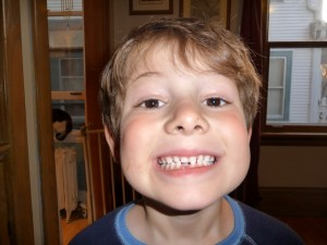 Toby on April 28, with gap in teeth